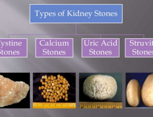 Stages Of Kidney Cancer Treatment Dr Irfan Shaikh Urolife Clinic Pune