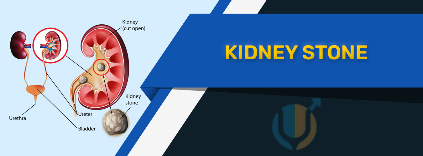 Kidney Stone Treatment in Pune
